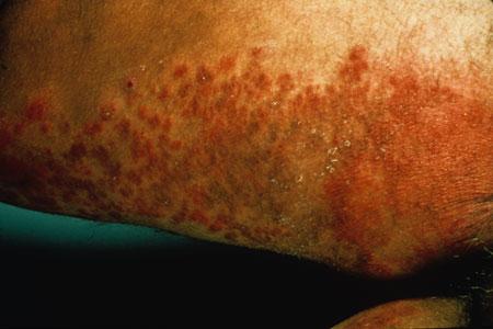 quoi ressemble linfection levures? Vidos, photos